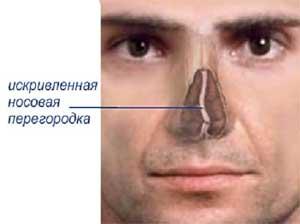 Искривление перегородки носа фото